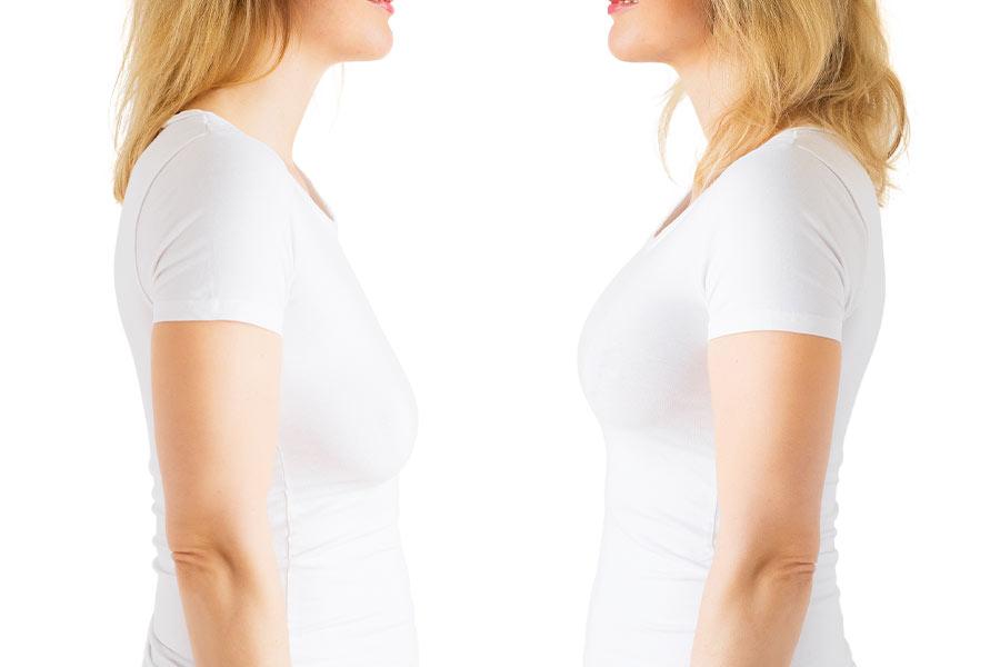 مراقبتهای قبل از عمل لیفت سینه