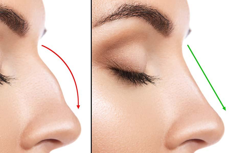 نکات و مراقبت های بعد از عمل زیبایی بینی