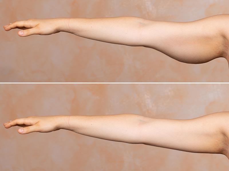 جراحی لیفت بازو چیست
