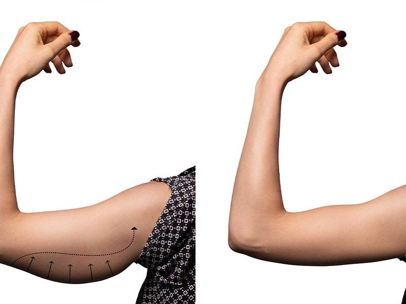 دوره نقاهت جراحی لیفت بازو